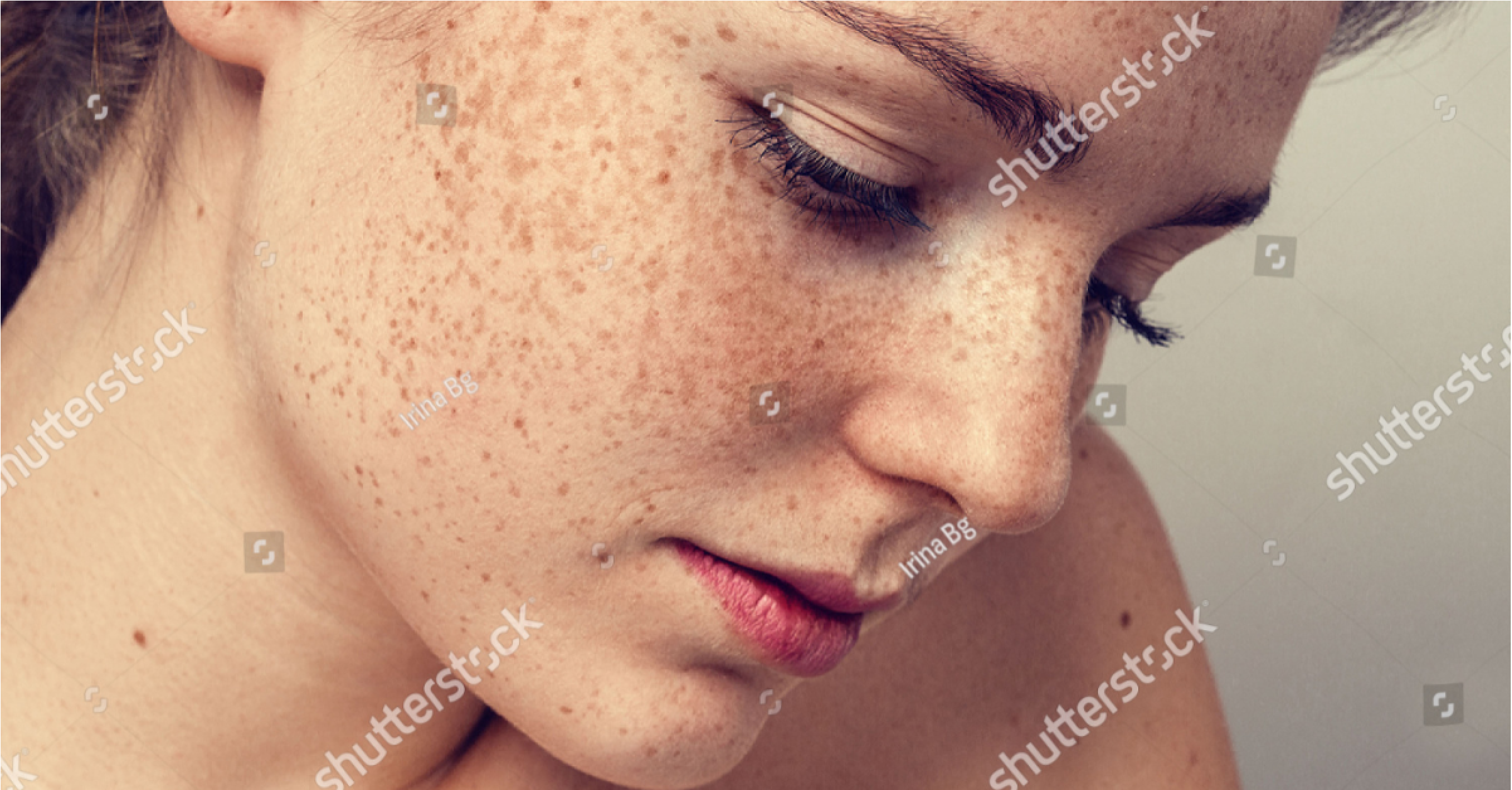 dermatology-young-beautiful-freckles-woman